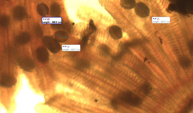 Microscopic image of Glochidia fish parasite